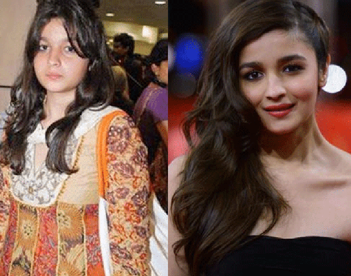 Alia Bhatt's Journey From Fat To Fit | FITPASS